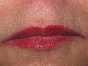 after-lips